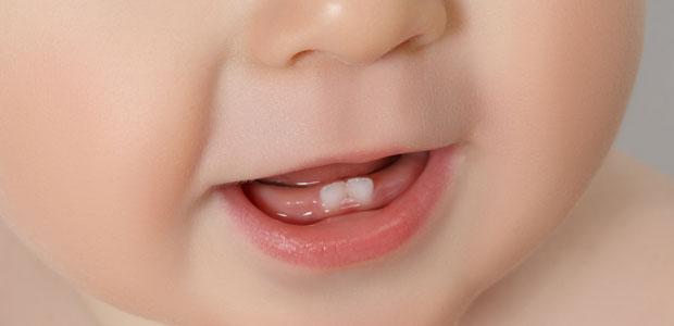 Escovando os Dentes do Bebê